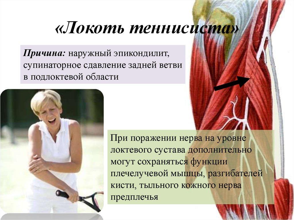 Изображение - Чем лечить эпикондилит локтевого сустава отзывы slide-30